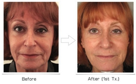 Jaw and Jowl Line Before and After AGNES RF