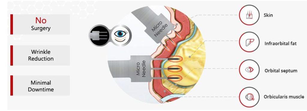 AGNES RF Eye Bag Diagram
