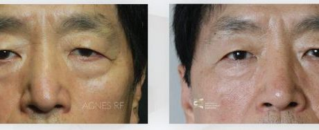 Eye Bags Before and After Agnes RF