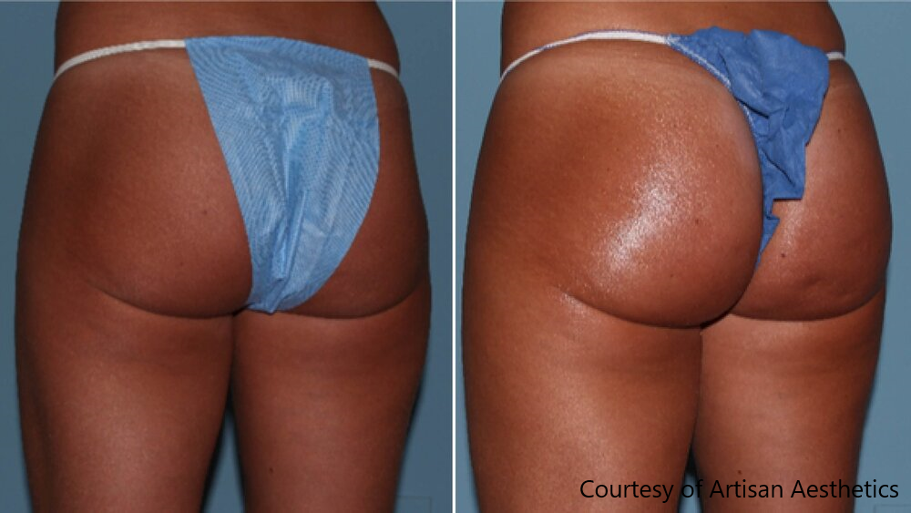 Sculptra butt lift before and after