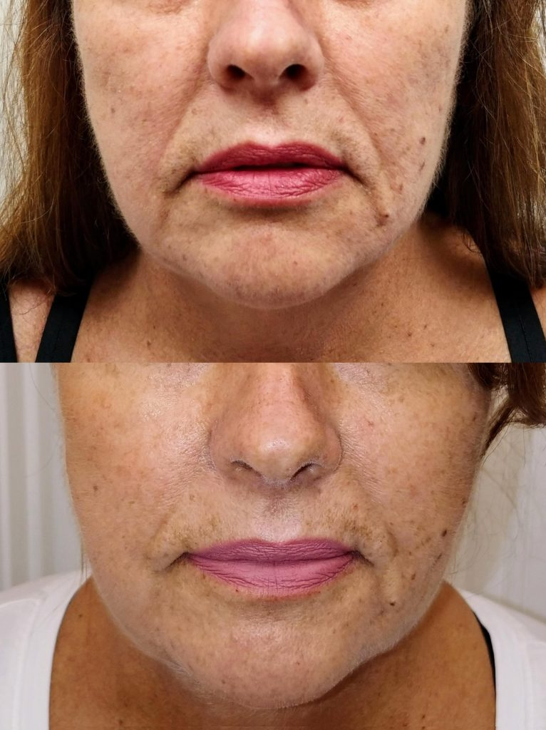 scarlet srf skin tightening folds