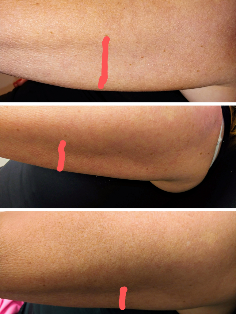 scarlet srf skin tightening arms