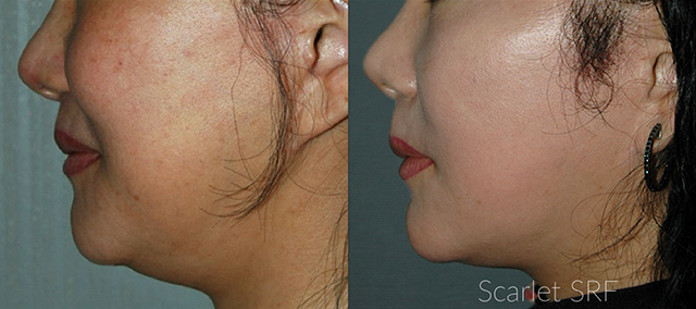 scarlet srf double chin reduction