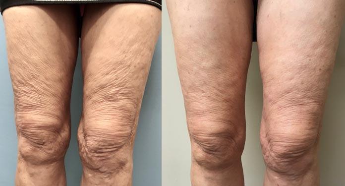 Scarlet SRF for thigh tightening